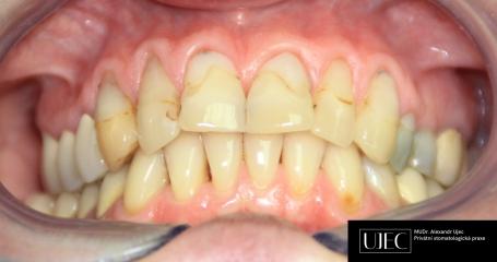 Zuby v horní čelisti s nevzhlednými krčkovými výplněmi