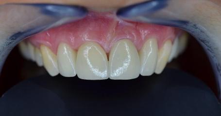 Parodontální operace - MUDr. Jan Dražan a e.max keramické korunky
