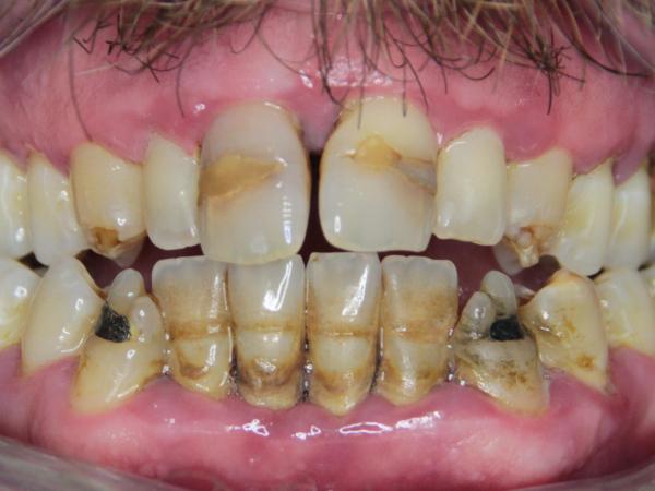 Parodontitis a emax fasety + korunky+ výplně